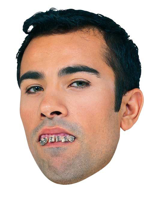 Fake Teeth With Braces